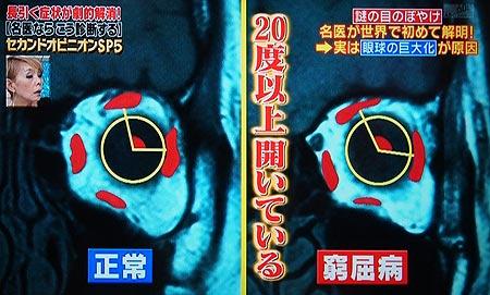 窮屈病のMRI画像